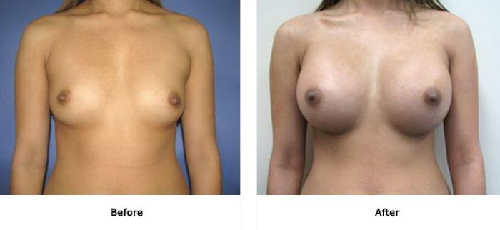 Breast 3 380cc Round High Profile Below Muscle