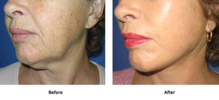 Facelift 2 Lift Plus Neck and Jowls 2