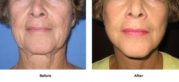 Facelift 3 Lift Plus Neck, Jowls and Midface