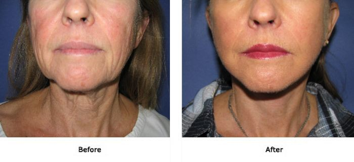 Facial rejuvenation procedure