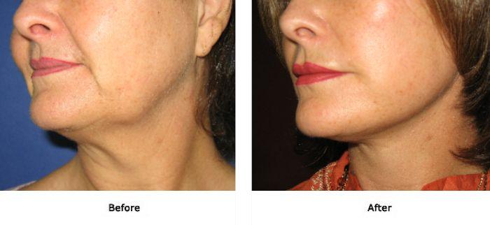 Precision Cosmetic Surgery | Mini Lift