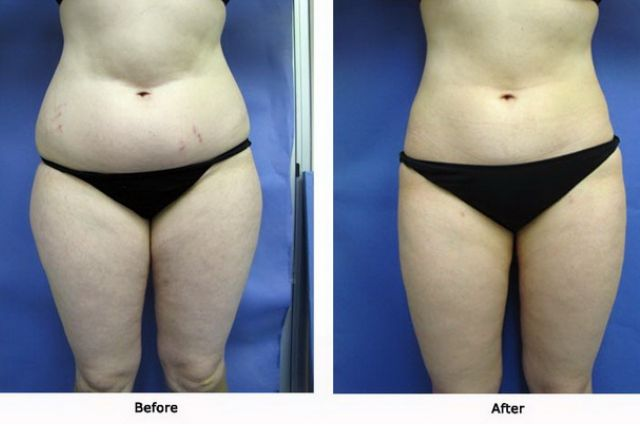 Liposuction 4 Abdomen, Flanks Outer Thighs and Inner Thighs