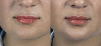 permanent filler lips